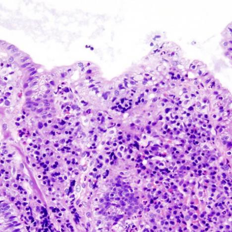 Ulcertive Colitis